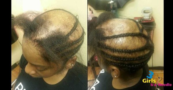 Alopecia Sew In Done By 3 Girls And A Needle Video