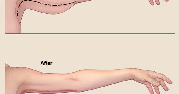 Under Arm Lifts : An arm lift brachioplasty is a cosmetic surgery