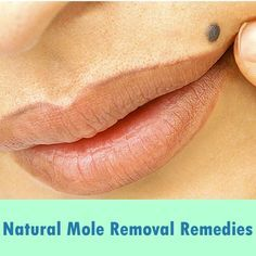 How To Get Rid Of Raised Moles On Your Skin Remedies For Natural Mole Removal At Home Homemade Creams For Mole Removal Natural Mole Removal Dry Skin Remedies