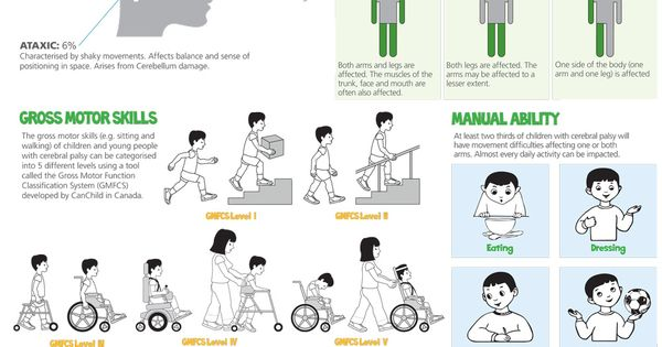 explain how disability affects development Mobility impairment is defined as a category of disability that includes people with varying types of physical disabilities this type of disability includes upper or lower limb loss or disability, manual dexterity and disability in co-ordination with different organs of the body.