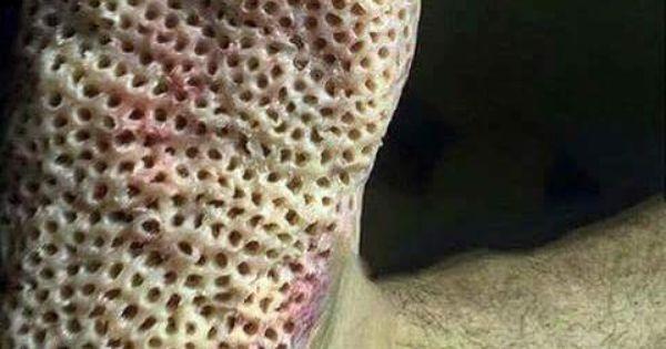 Trypophobia Trigger by Parasites (Jiggers). Subido x Mery ...