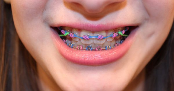 This is cool | Braces Colors and Patterns | Pinterest ...