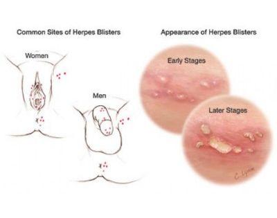 Site de rencontre herpes genital