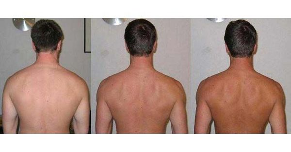 Before and after Melanotan tanning therapy, sunless