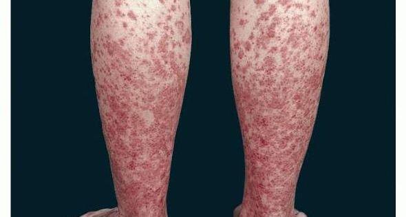 Schamberg S Disease Natural Treatment
