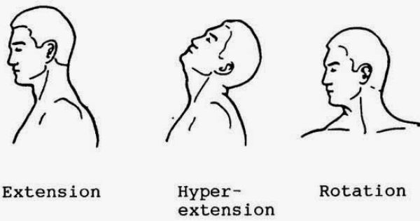 flexion extension hyper