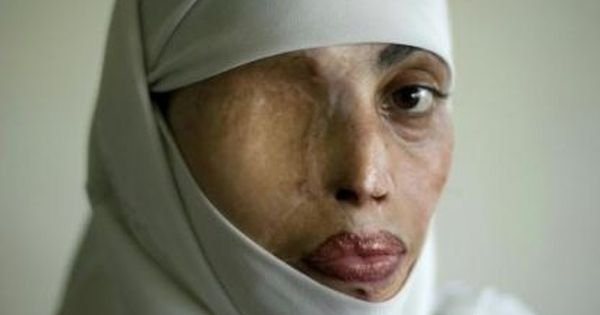 Muslim Women Abuse | 13 Beautiful Muslim Women | In the ...