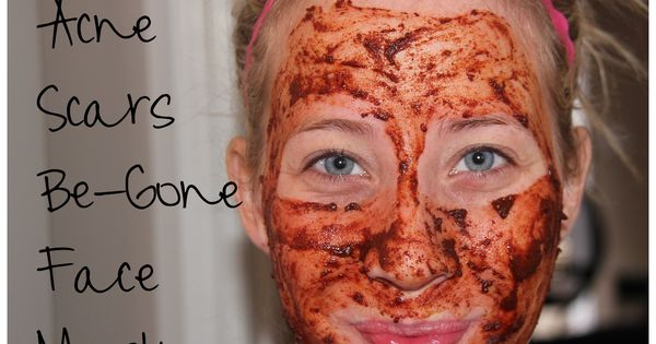 The burning face mask- Natural face mask: nutmeg (anti-inflammatory), cinnamon (anti-fungal, astringent,