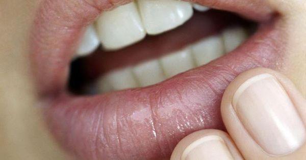 Genital Herpes On Penile Head Why don't people talk ...