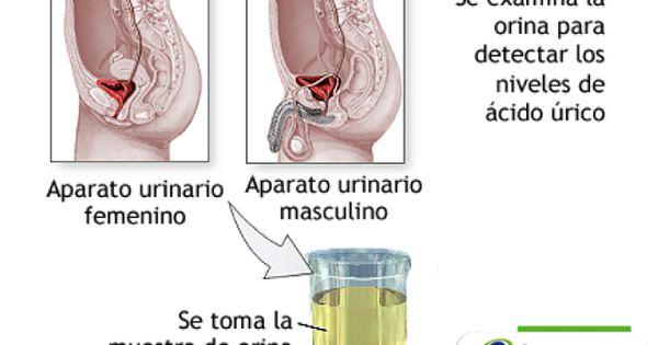 dieta para la gota y diabetes colchicina acido urico sidra y acido urico