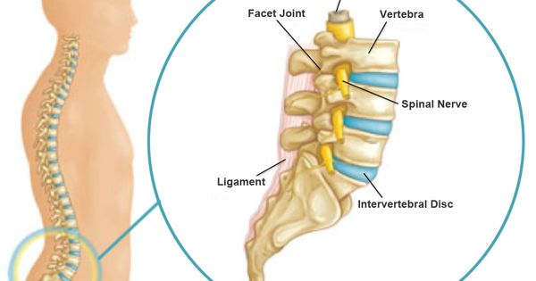 cervical spinal stenosis with myelopathy and radiculopathy
