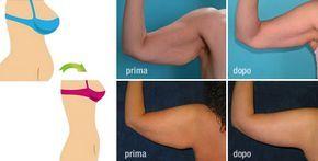 modi veloci per sbarazzarsi di grasso del braccio