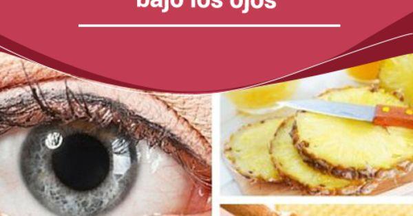Se ha hinchado el ojo a sinusite