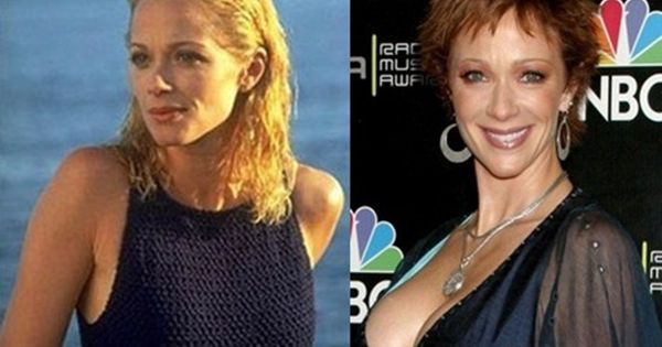 Lauren Holly Plastic Surgery Before And After Plastic