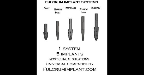 #Fulcrum #DentalImplants