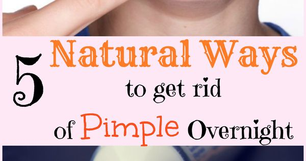 how to get rid of pimples in 3 days naturally