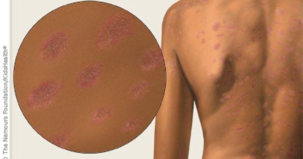 Pin On Childhood Diseases Rashes