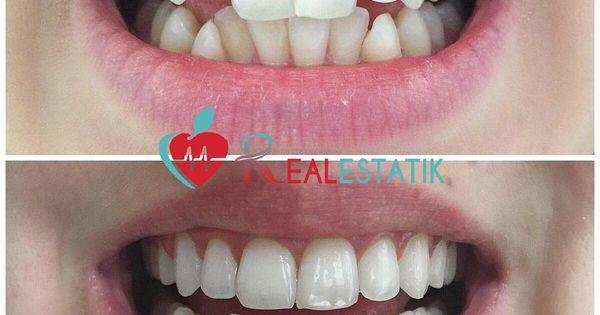 ابتسامة هوليود Ortodonti Makyaj