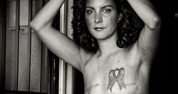 "The Scar Project: ""Breast Cancer is not a Pink Ribbon"" This work"