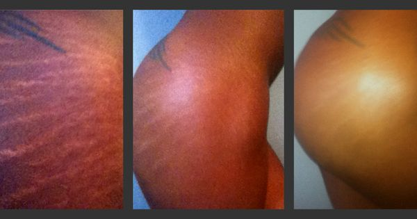 stretch mark treatment. strivectin and 25% tca peel ...
