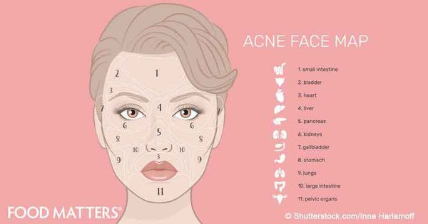 how to stop pimples on your but