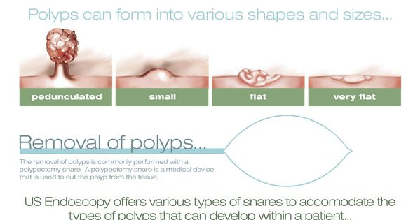 Polypectomy the stats facts and tools infographic for Medical product design companies