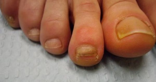 how to fix thick yellow toenails