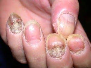 psoriasis ungueal remedios caseros