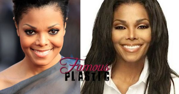 Janet Jackson Over Did The Plastic Surgery In 2012