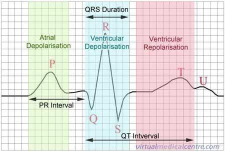 Basic ECG Rhythm Interpretation - RN.com