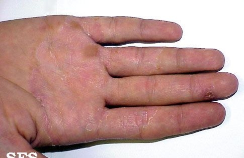 b82ab34bc7a107f023cb3afafdb039b4 - How To Get Rid Of Small Itchy Bumps On Hands