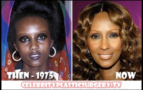 Ex Miss Cameroon Changing Her Skin To White Because Rich ...