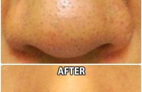 how to take away blackheads on nose