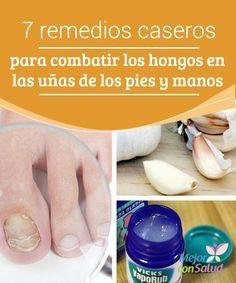 remedios caseros para los hongos en uñas de las manos