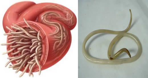 vermi intestinali e alitosi