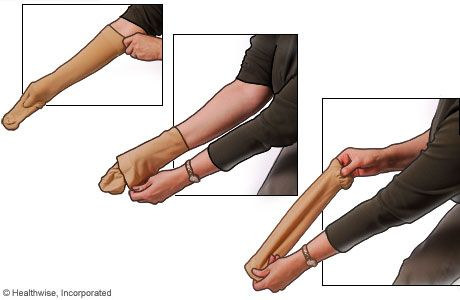 How To Put On Compression Stockings Metro Health Hospital Metro Compression Stockings Stockings Compression