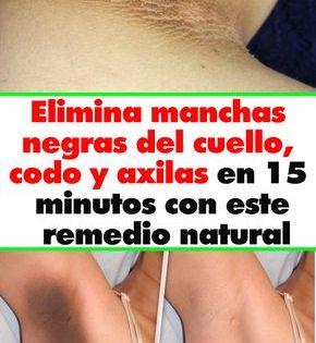 Elimina Manchas Negras Del Cuello Codo Y Axilas En 15 Minutos Con Este Remedio Natural Face Care Beauty Skin How To Look Better