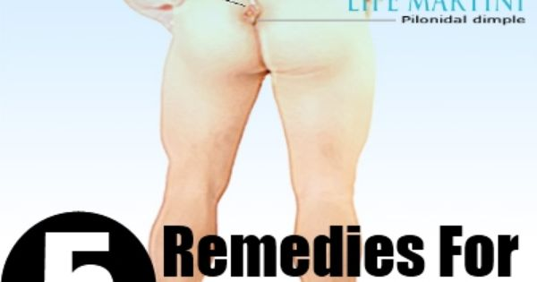 home depot jobs yuma az with Pilonidal Cyst Home Remedies on Best Bathroom Heater also Motorcycle Accident Yuma Az furthermore Motorcycle Accident Yuma Az moreover A 37 56278 4 1 4 X 4 1 4 Inch CERAMIC DALTILE TILE LIGHT GREY 50 COLLEGE AREA moreover Pilonidal Cyst Home Remedies.