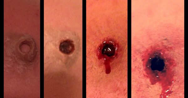 Bullet wound using special fx wax, liquid latex, black eye