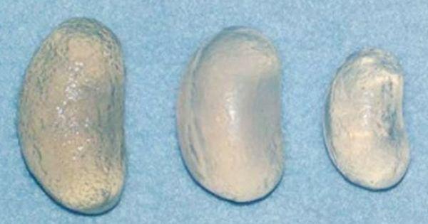 testicular prothesis