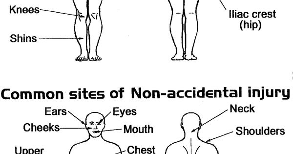 diagram showing typical sites of accidental injury