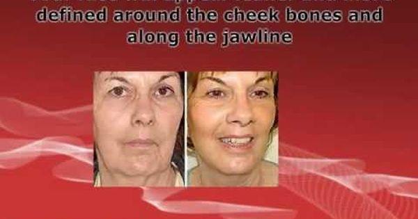 Deal will facial exercises improve skin tone