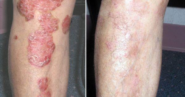 Acne Scar Laser Treatment Psoriasis Laser Treatment