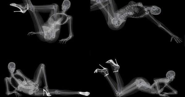 X Ray Calendar : X ray pin up calendar by ben meme center dog kennels