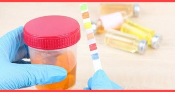 أسماء أدوية علاج التهاب المسالك البولية Electronic Products Convenience Store Products Pill
