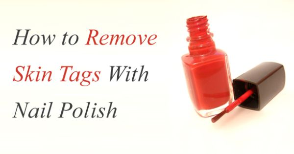 Nail Polish For Skin Tag Removal – a Very Simple Procedure ...