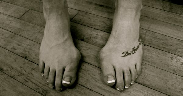 Ballet Dancers Feet Deformed Kind Of Witch Like In A
