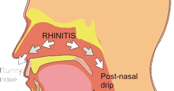 how to stop post nasal drip naturally