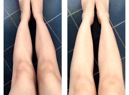 c6d27b23aa9a95bb6aa021e8c2c372fd - How To Get Rid Of Black Knees And Armpits
