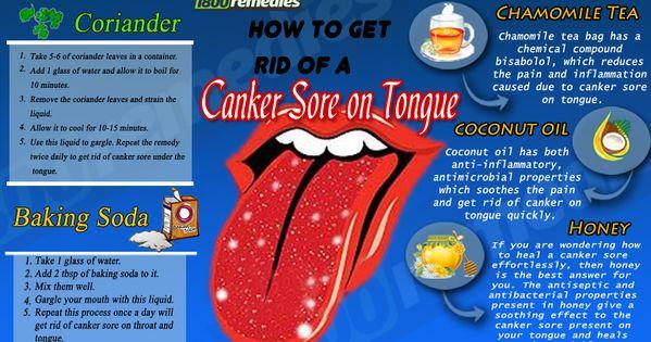 canker sore medicine